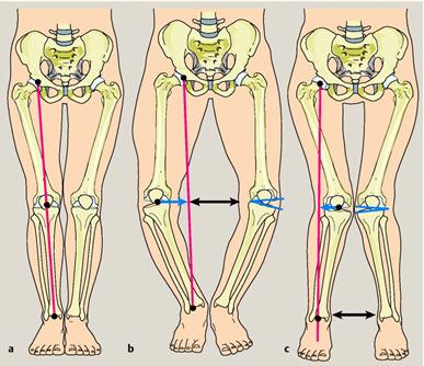Osteoartritis Pengapuran Tulang, Nyeri Tulang, Nyeri Sendi