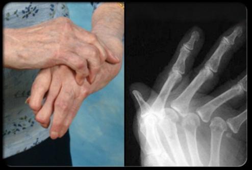 ... kehancuran tulang rawan tulang maupun ligamen atau deformitas sendi
